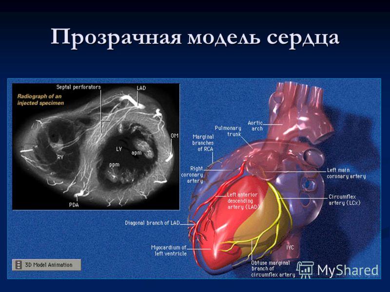 Прозрачная модель сердца