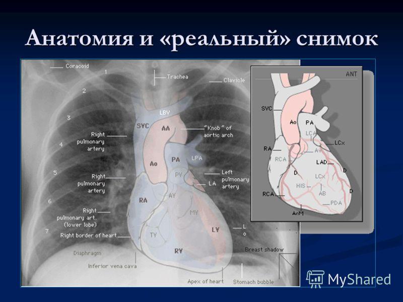 Анатомия и «реальный» снимок