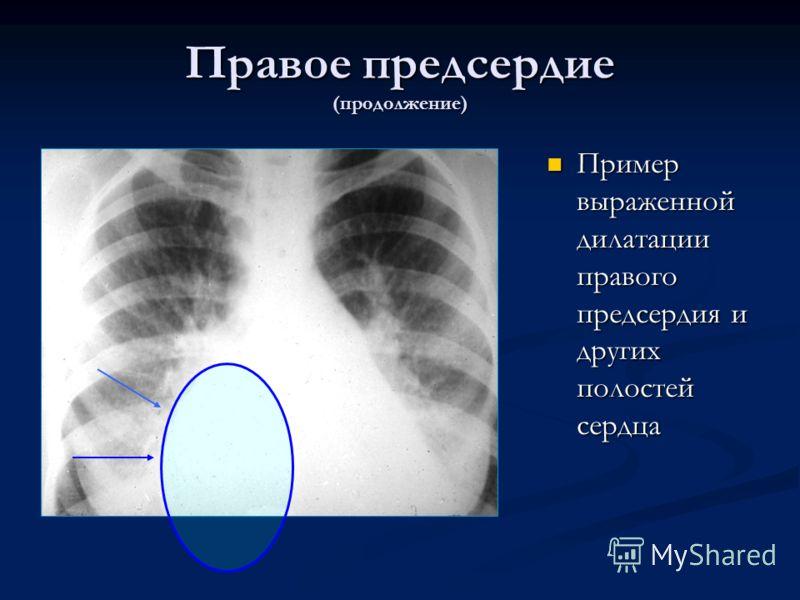Правое предсердие (продолжение) Пример выраженной дилатации правого предсердия и других полостей сердца