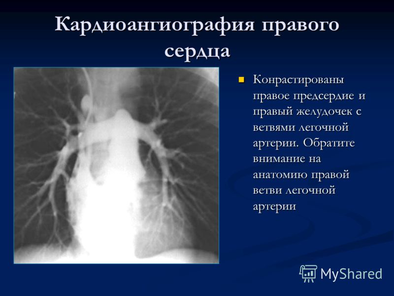 Кардиоангиография правого сердца Конрастированы правое предсердие и правый желудочек с ветвями легочной артерии. Обратите внимание на анатомию правой ветви легочной артерии