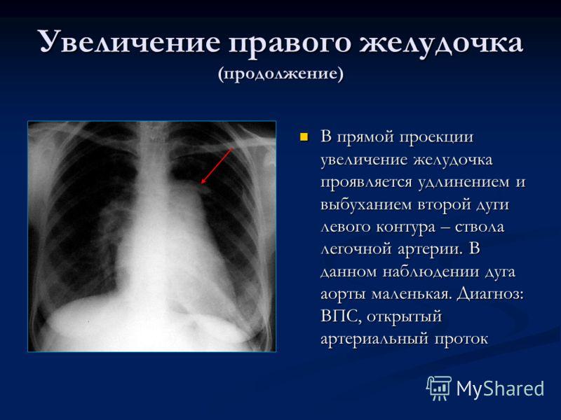 Увеличение правого желудочка (продолжение) В прямой проекции увеличение желудочка проявляется удлинением и выбуханием второй дуги левого контура – ствола легочной артерии. В данном наблюдении дуга аорты маленькая. Диагноз: ВПС, открытый артериальный