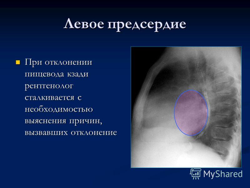 Левое предсердие При отклонении пищевода кзади рентгенолог сталкивается с необходимостью выяснения причин, вызвавших отклонение При отклонении пищевода кзади рентгенолог сталкивается с необходимостью выяснения причин, вызвавших отклонение
