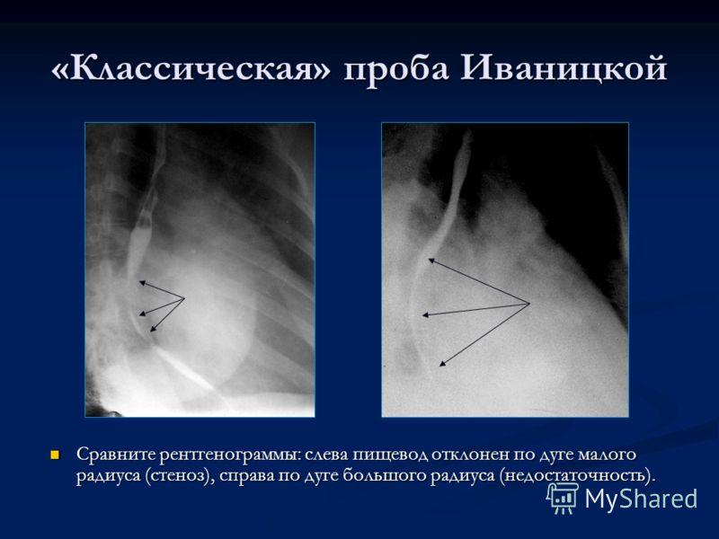 «Классическая» проба Иваницкой Сравните рентгенограммы: слева пищевод отклонен по дуге малого радиуса (стеноз), справа по дуге большого радиуса (недостаточность).