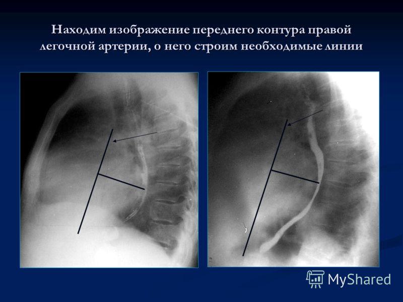 Находим изображение переднего контура правой легочной артерии, о него строим необходимые линии