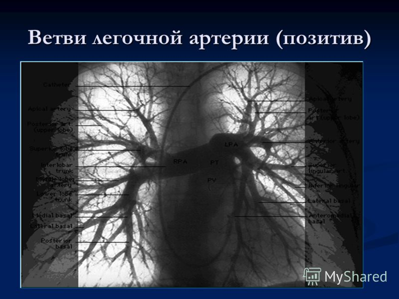 Ветви легочной артерии (позитив)