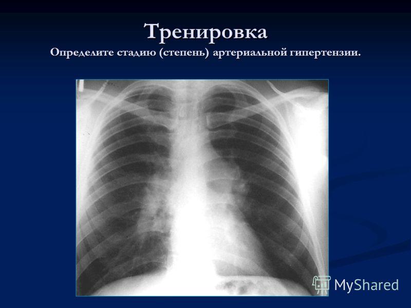 Тренировка Определите стадию (степень) артериальной гипертензии.