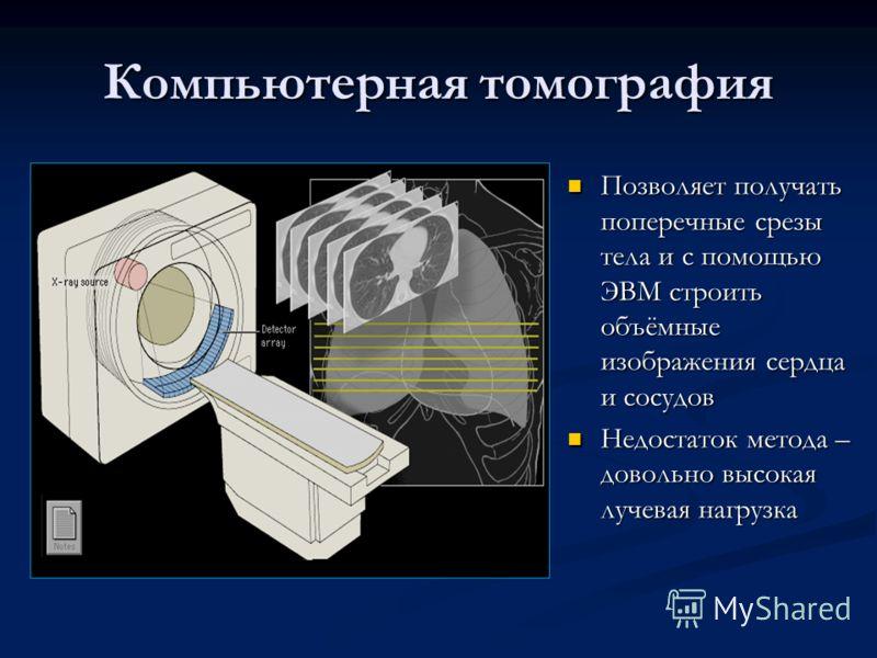 Компьютерная томография Позволяет получать поперечные срезы тела и с помощью ЭВМ строить объёмные изображения сердца и сосудов Недостаток метода – довольно высокая лучевая нагрузка