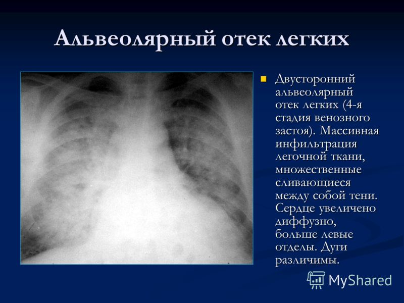Альвеолярный отек легких Двусторонний альвеолярный отек легких (4-я стадия венозного застоя). Массивная инфильтрация легочной ткани, множественные сливающиеся между собой тени. Сердце увеличено диффузно, больше левые отделы. Дуги различимы.