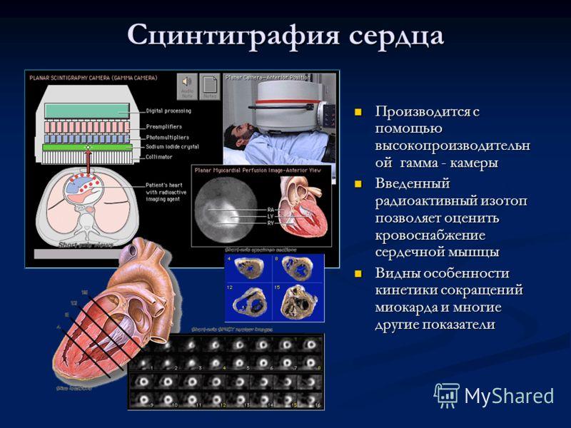 Сцинтиграфия сердца Производится с помощью высокопроизводительн ой гамма - камеры Введенный радиоактивный изотоп позволяет оценить кровоснабжение сердечной мышцы Видны особенности кинетики сокращений миокарда и многие другие показатели