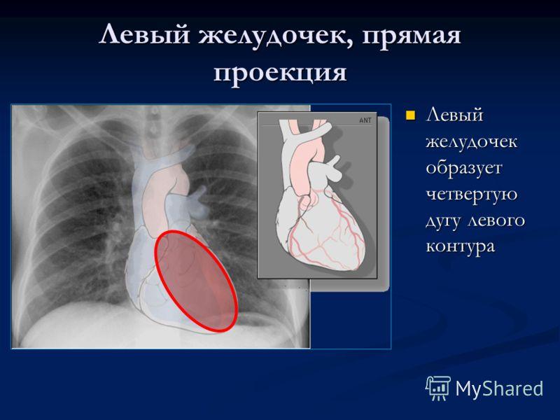 Левый желудочек, прямая проекция Левый желудочек образует четвертую дугу левого контура