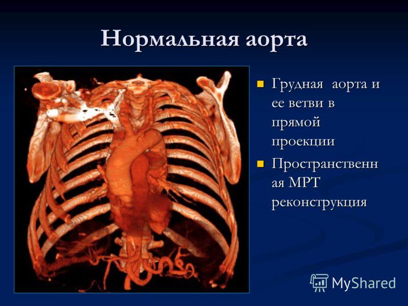 Нормальная аорта Грудная аорта и ее ветви в прямой проекции Пространственн ая МРТ реконструкция