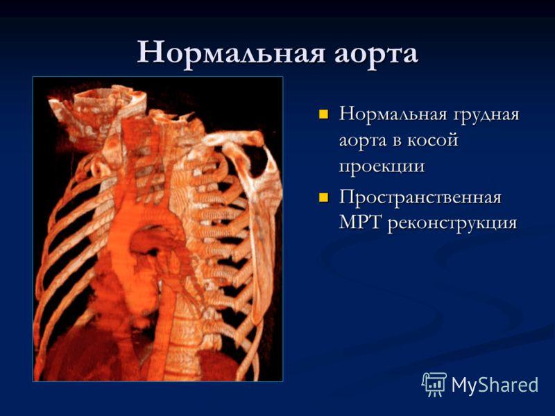 Нормальная аорта Нормальная грудная аорта в косой проекции Пространственная МРТ реконструкция