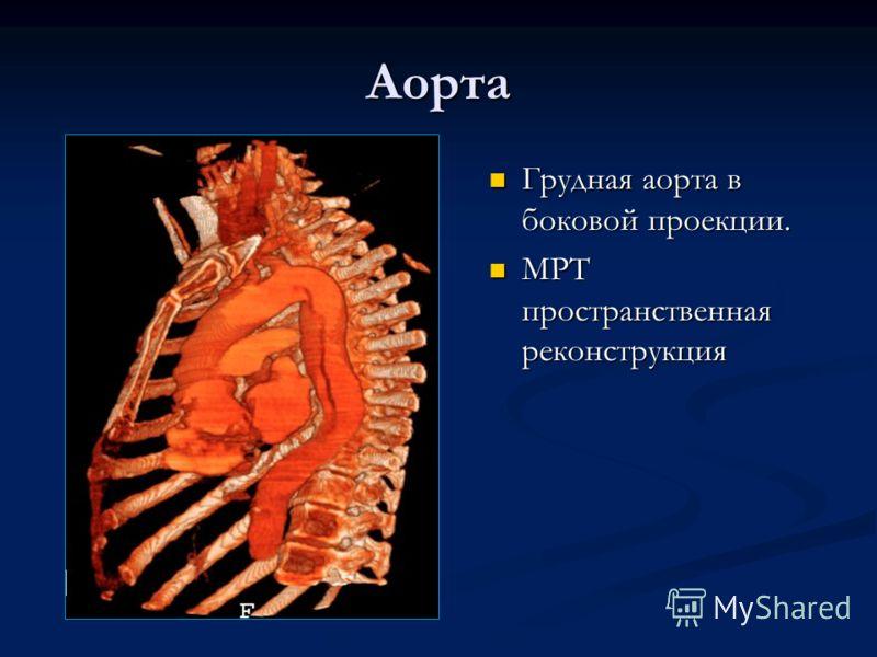 Аорта Грудная аорта в боковой проекции. МРТ пространственная реконструкция