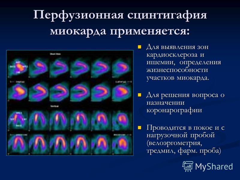 Перфузионная сцинтигафия миокарда применяется: Для выявления зон кардиосклероза и ишемии, определения жизнеспособности участков миокарда. Для решения вопроса о назначении коронарографии Проводится в покое и с нагрузочной пробой (велоэргометрия, тредм