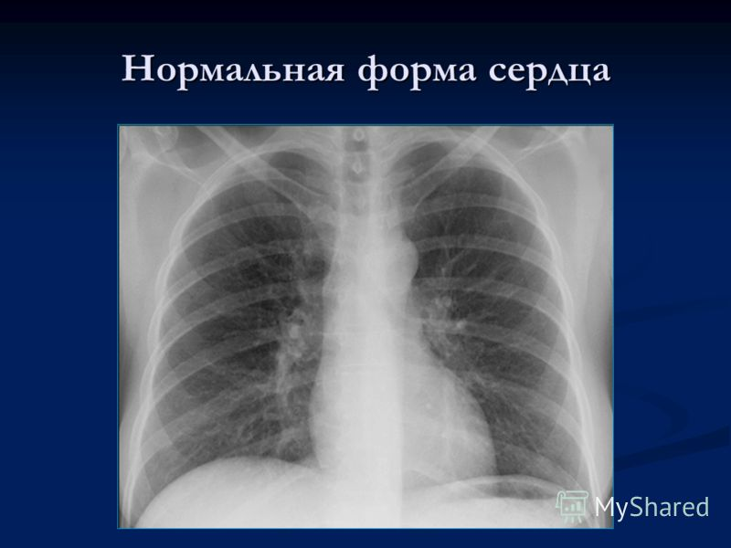 Нормальная форма сердца
