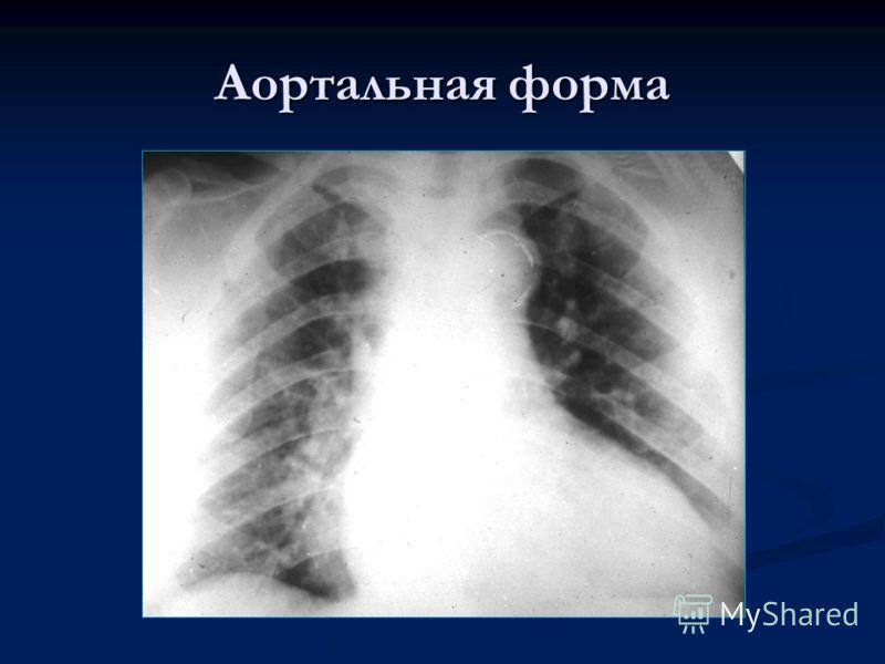 Аортальная форма