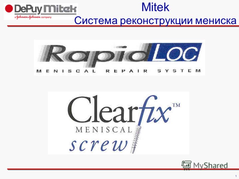 1 Mitek Cистема реконструкции мениска