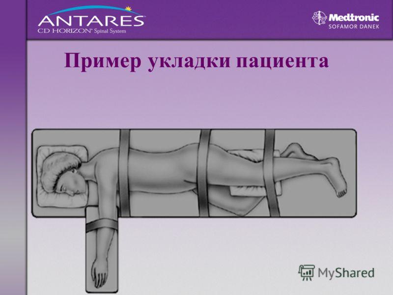 Пример укладки пациента