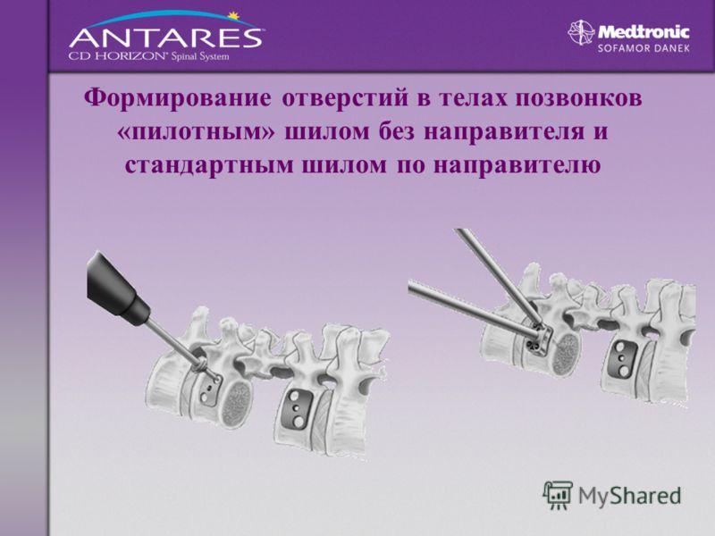 Формирование отверстий в телах позвонков «пилотным» шилом без направителя и стандартным шилом по направителю