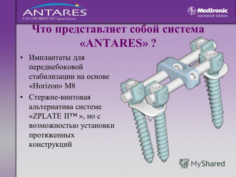 Что представляет собой система «ANTARES» ? Имплантаты для переднебоковой стабилизации на основе «Horizon» М8 Стержне-винтовая альтернатива системе «ZPLATE II », но с возможностью установки протяженных конструкций