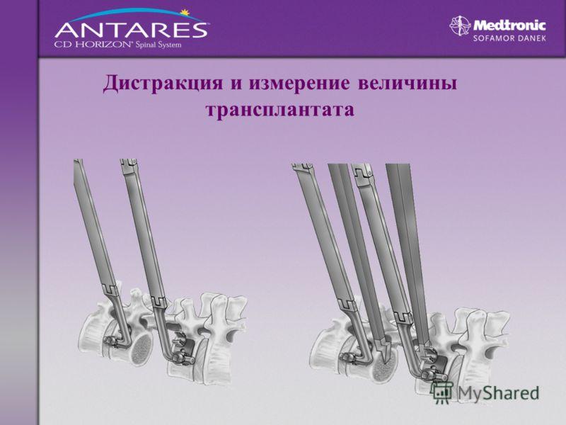 Дистракция и измерение величины трансплантата