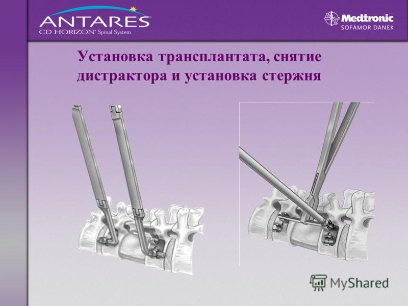 Установка трансплантата, снятие дистрактора и установка стержня
