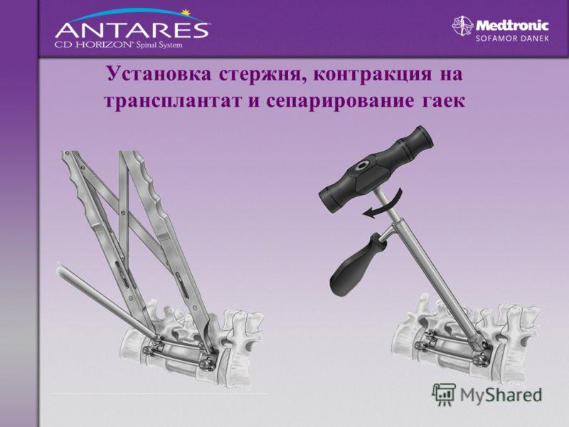 Установка стержня, контракция на трансплантат и сепарирование гаек