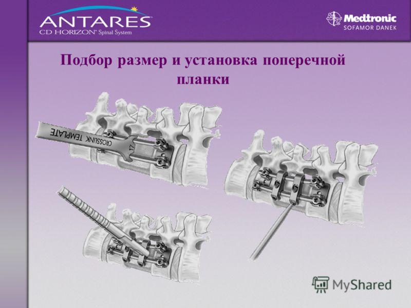 Подбор размер и установка поперечной планки