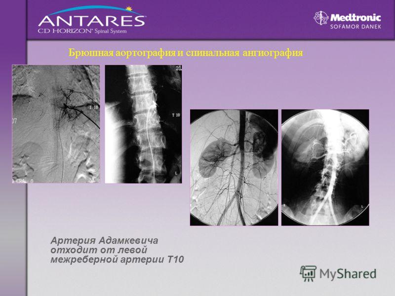 Брюшная аортография и спинальная ангиография Артерия Адамкевича отходит от левой межреберной артерии Т10