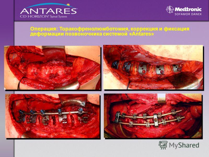 Операция: Торакофренолюмботомия, коррекция и фиксация деформации позвоночника системой «Antares»