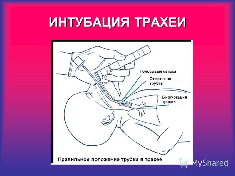 Голосовые связки Отметка на трубке Бифуркация трахеи Правильное положение трубки в трахее