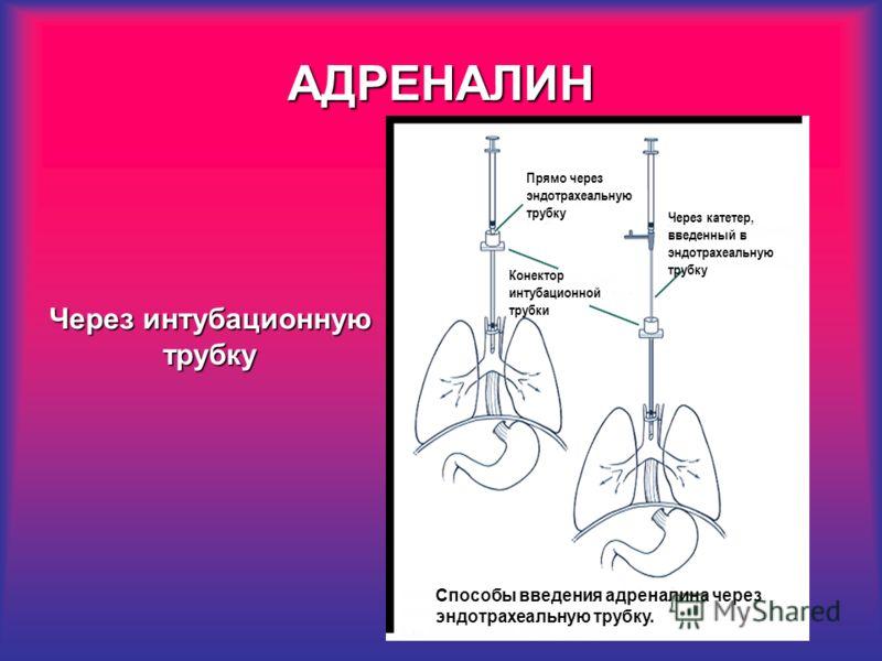 АДРЕНАЛИН Прямо через эндотрахеальную трубку Конектор интубационной трубки Через катетер, введенный в эндотрахеальную трубку Способы введения адреналина через эндотрахеальную трубку. Через интубационную трубку