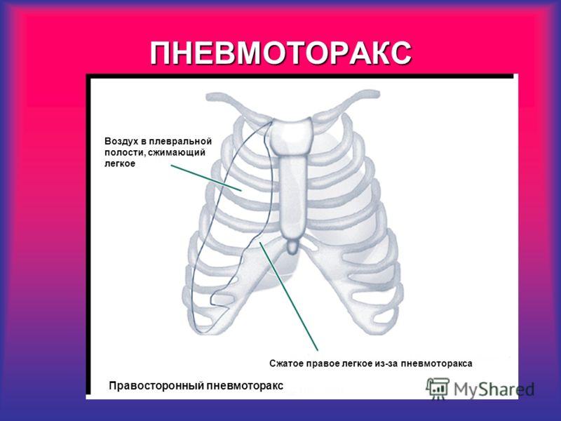 Воздух в плевральной полости, сжимающий легкое Сжатое правое легкое из-за пневмоторакса Правосторонный пневмоторакс ПНЕВМОТОРАКС