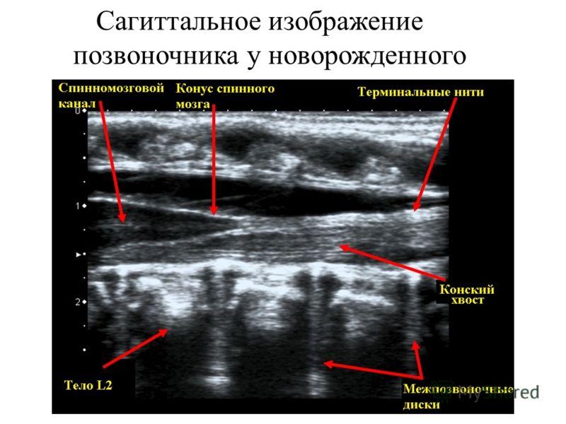 Сагиттальное изображение позвоночника у новорожденного