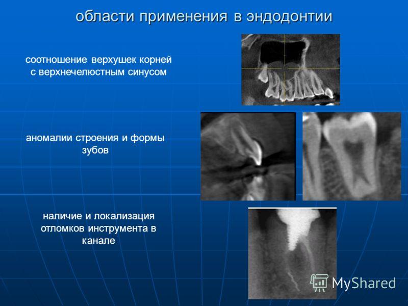соотношение верхушек корней с верхнечелюстным синусом аномалии строения и формы зубов наличие и локализация отломков инструмента в канале области применения в эндодонтии