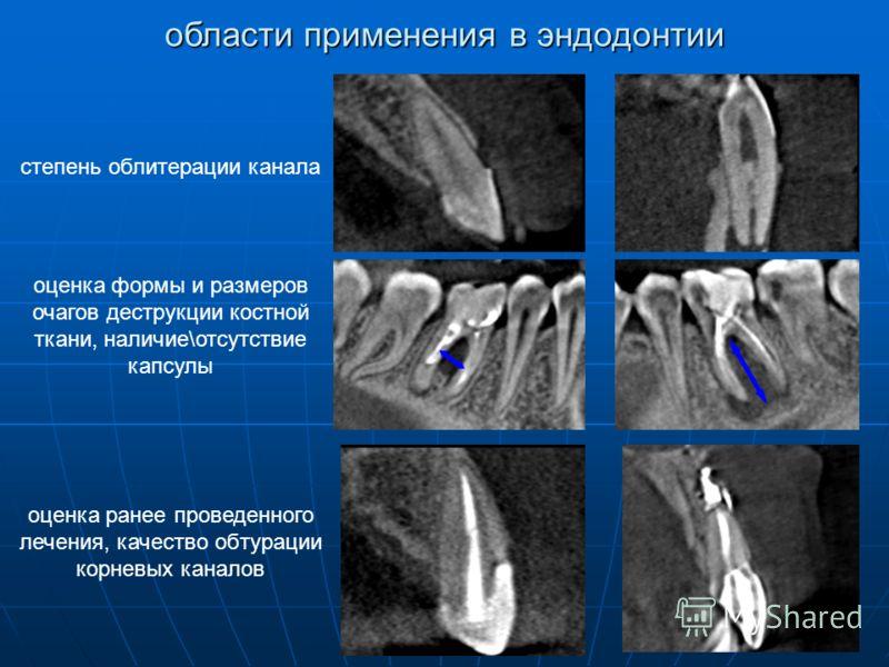 оценка ранее проведенного лечения, качество обтурации корневых каналов оценка формы и размеров очагов деструкции костной ткани, наличие\отсутствие капсулы степень облитерации канала области применения в эндодонтии