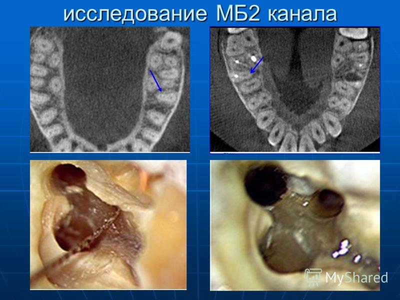 исследование МБ2 канала