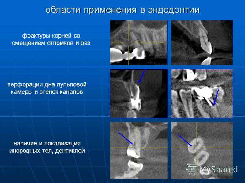 фрактуры корней со смещением отломков и без наличие и локализация инородных тел, дентиклей перфорации дна пульповой камеры и стенок каналов области применения в эндодонтии