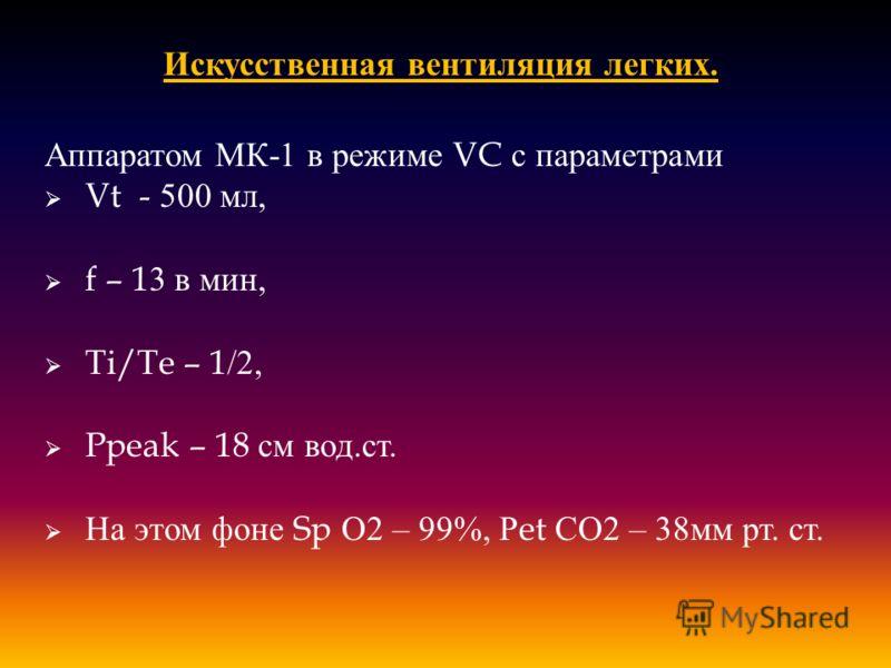 Искусственная вентиляция легких. Аппаратом МК -1 в режиме VC с параметрами Vt - 500 мл, f – 13 в мин, Ti/Te – 1/2, Ppeak – 18 см вод. ст. На этом фоне Sp О 2 – 99%, Р et СО 2 – 38 мм рт. ст.