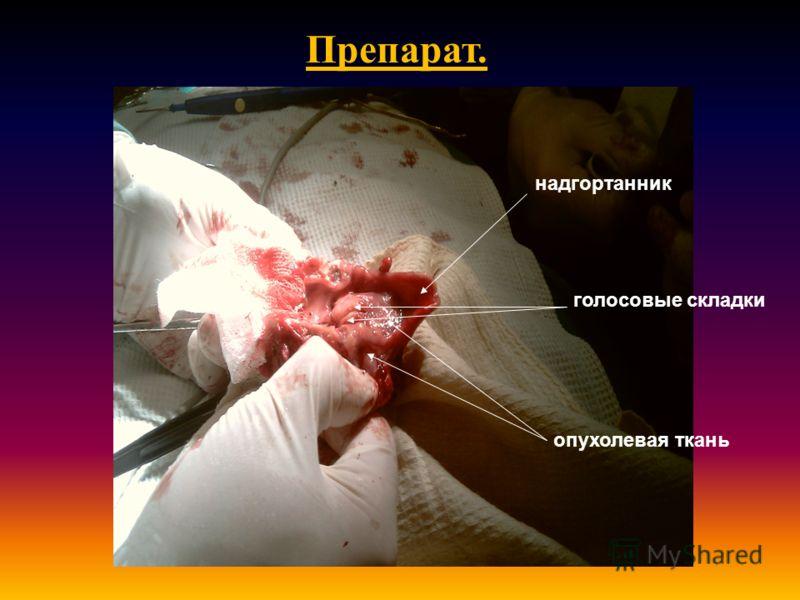 надгортанник голосовые складки опухолевая ткань Препарат.