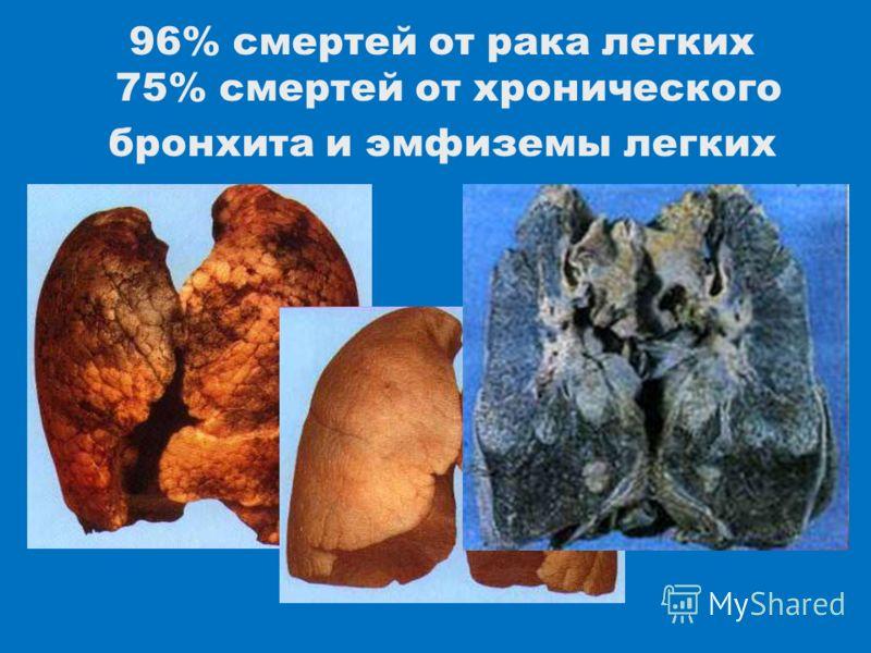 96% смертей от рака легких 75% смертей от хронического бронхита и эмфиземы легких
