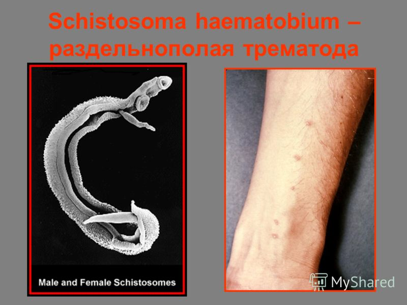 Schistosoma haematobium – раздельнополая трематода