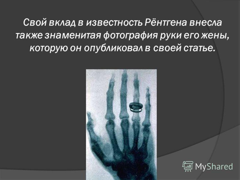 Свой вклад в известность Рёнтгена внесла также знаменитая фотография руки его жены, которую он опубликовал в своей статье.