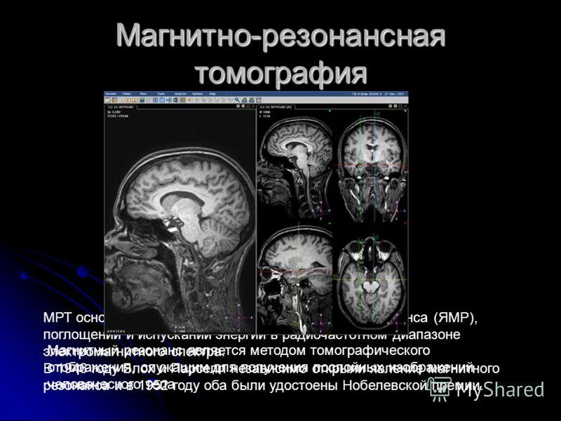 Магнитно-резонансная томография МРТ основана на принципах ядерно-магнитного резонанса (ЯМР), поглощении и испускании энергии в радиочастотном диапазоне электромагнитного спектра. В 1946 году Блох и Парселл независимо открыли явление магнитного резона