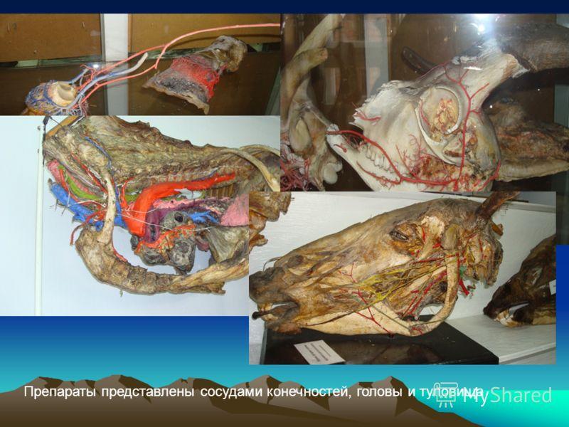 Препараты представлены сосудами конечностей, головы и туловища