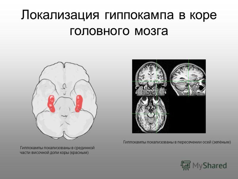 Локализация гиппокампа в коре головного мозга Гиппокампы локализованы в пересечении осей (зелёным) Гиппокампы локализованы в срединной части височной доли коры (красным)