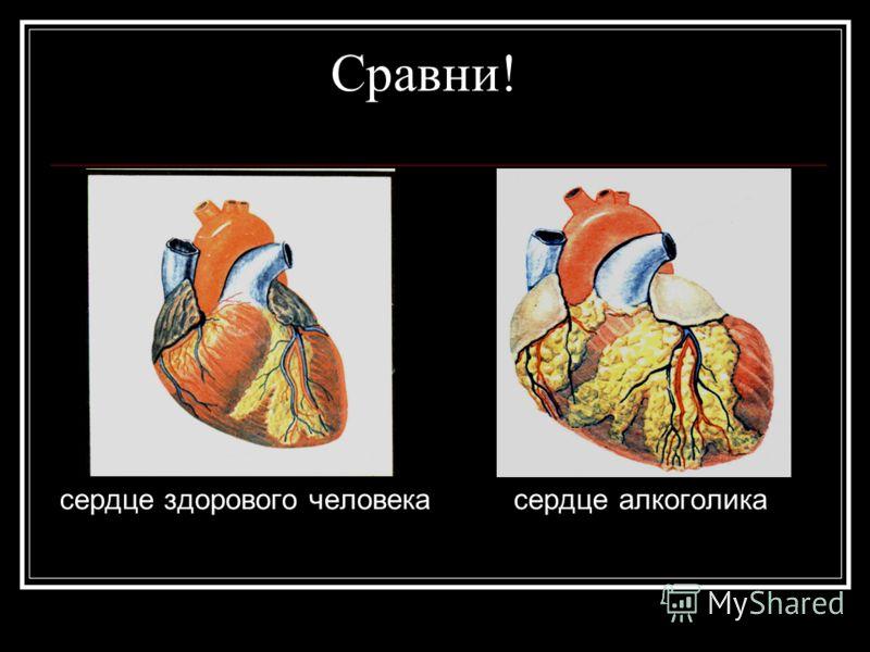Сравни! сердце здорового человека сердце алкоголика
