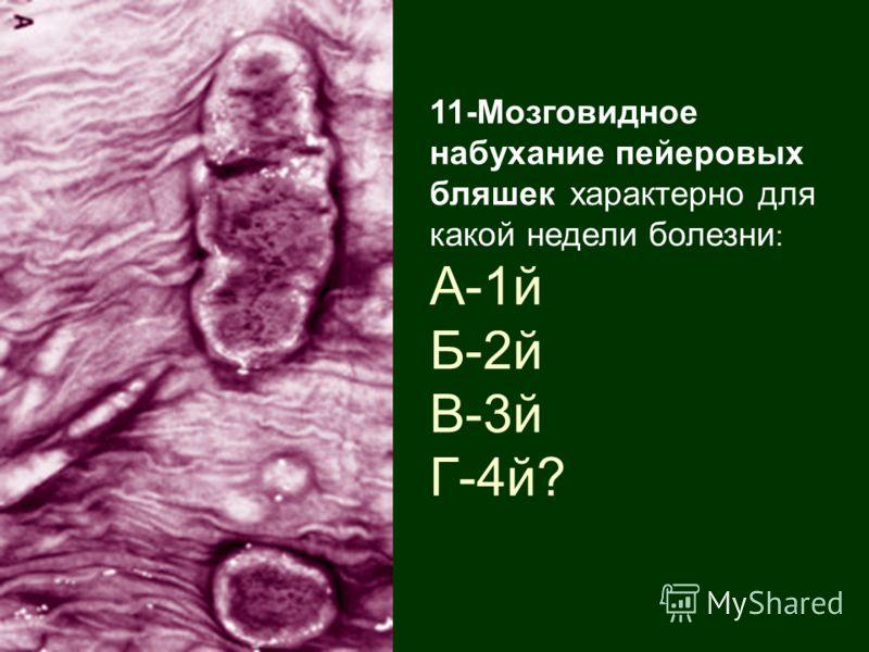 11-Мозговидное набухание пейеровых бляшек характерно для какой недели болезни : А-1й Б-2й В-3й Г-4й?