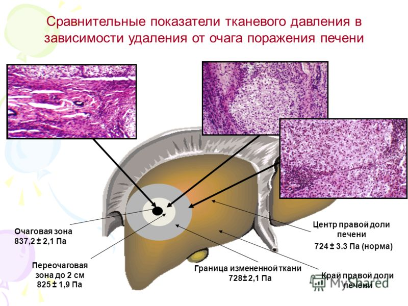 Сравнительные показатели тканевого давления в зависимости удаления от очага поражения печени Очаговая зона 837,2 ± 2,1 Па Граница измененной ткани 728± 2,1 Па Центр правой доли печени 724 ± 3.3 Па (норма) Край правой доли печени Переочаговая зона до