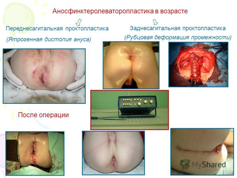 Аносфинктеролеваторопластика в возрасте (Ятрогенная дистопия ануса) После операции Переднесагитальная проктопластика Заднесагитальная проктопластика (Рубцовая деформация промежности)